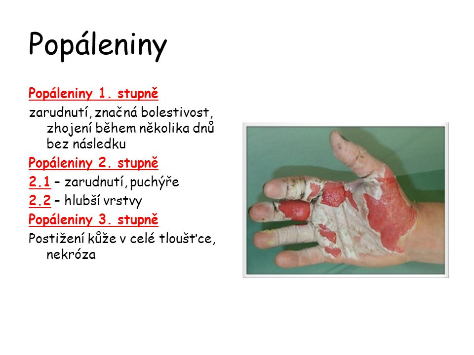 Popáleniny Popáleniny 1. stupně zarudnutí, značná bolestivost, zhojení během několika dnů bez následku Popáleniny 2. stupně 2.1 – zarudnutí, puchýře 2
