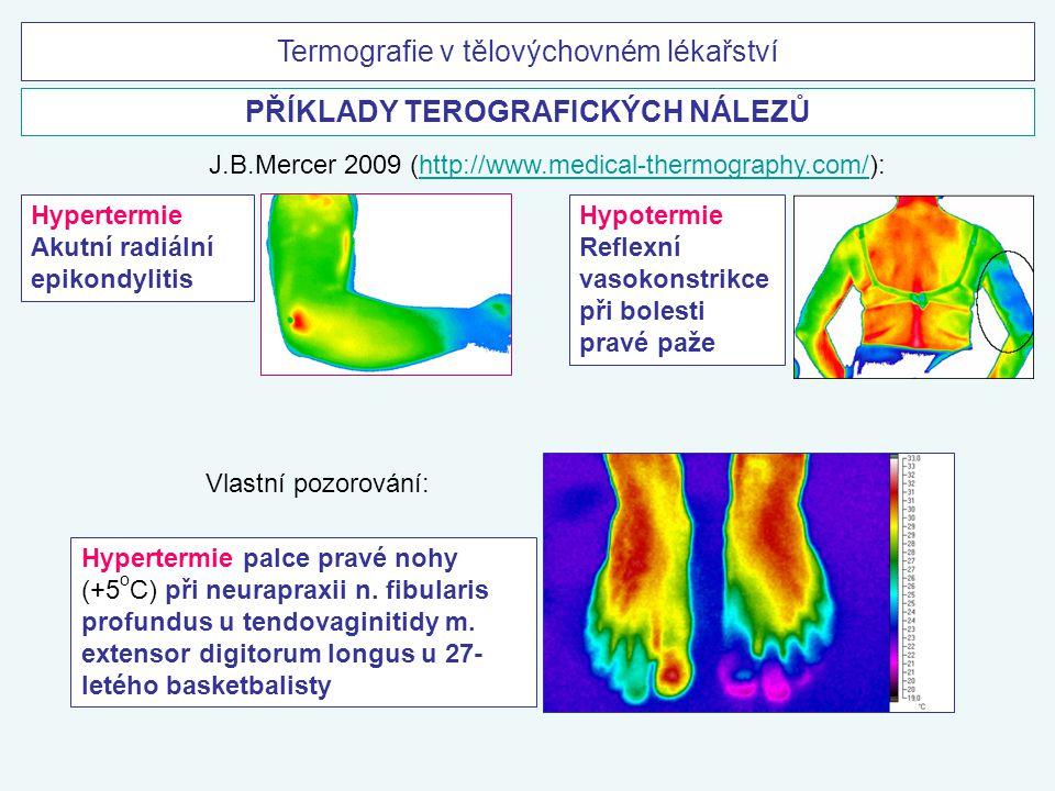 Termografie v tělovýchovném lékařství PŘÍKLADY TEROGRAFICKÝCH NÁLEZŮ Hypertermie Akutní radiální epikondylitis Hypotermie Reflexní vasokonstrikce při
