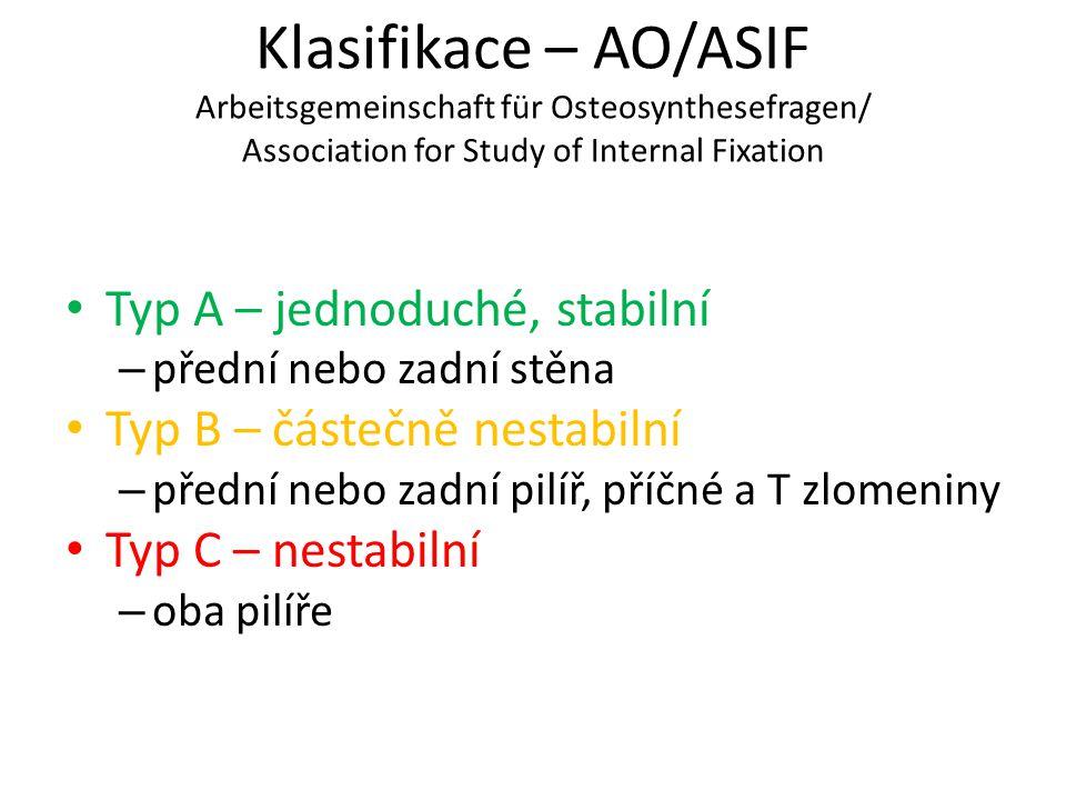 Klasifikace – AO/ASIF Arbeitsgemeinschaft für Osteosynthesefragen/ Association for Study of Internal Fixation Typ A – jednoduché, stabilní – přední ne