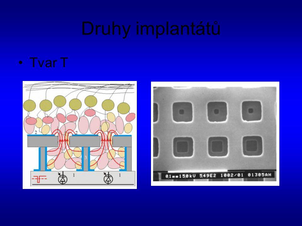 Druhy implantátů Tvar T