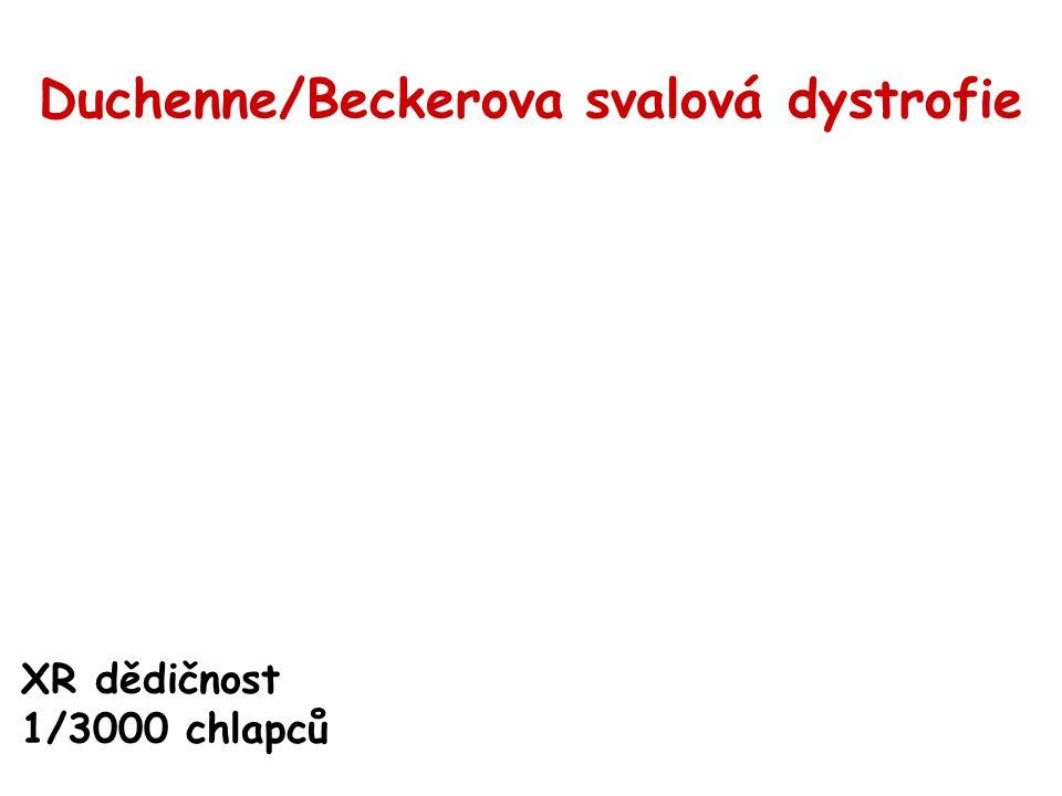 Duchenne/Beckerova svalová dystrofie XR dědičnost 1/3000 chlapců