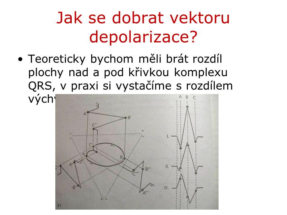 Jak se dobrat vektoru depolarizace? Teoreticky bychom měli brát rozdíl plochy nad a pod křivkou komplexu QRS, v praxi si vystačíme s rozdílem výchylek