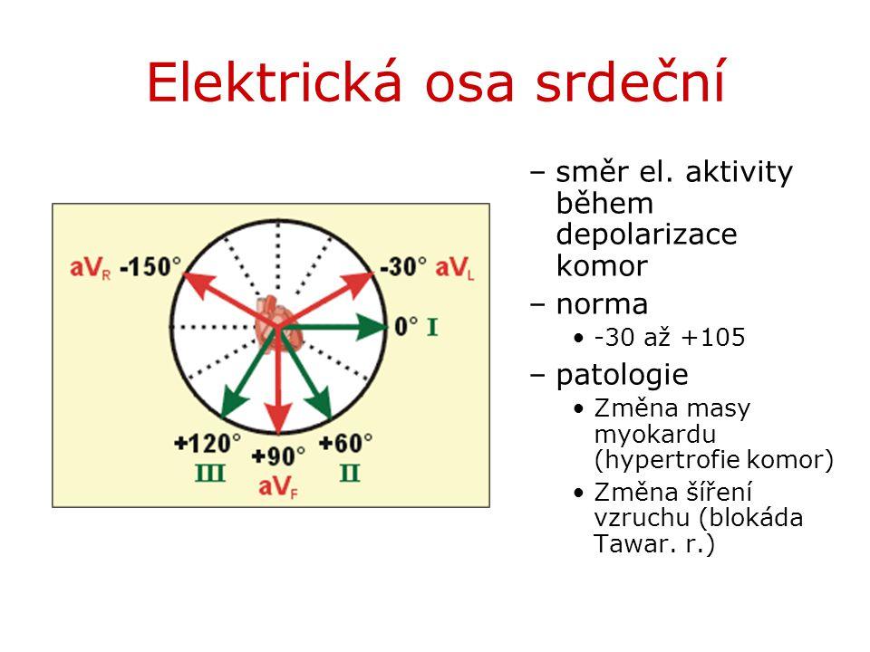 Elektrická osa srdeční –směr el. aktivity během depolarizace komor –norma -30 až +105 –patologie Změna masy myokardu (hypertrofie komor) Změna šíření