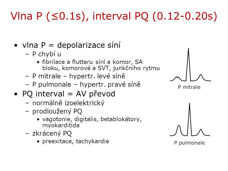 Vlna P (≤0.1s), interval PQ (0.12-0.20s) vlna P = depolarizace síní –P chybí u fibrilace a flutteru síní a komor, SA bloku, komorové a SVT, junkčního