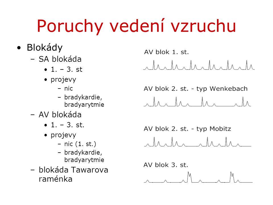 Poruchy vedení vzruchu Blokády –SA blokáda 1. – 3. st projevy –nic –bradykardie, bradyarytmie –AV blokáda 1. – 3. st. projevy –nic (1. st.) –bradykard
