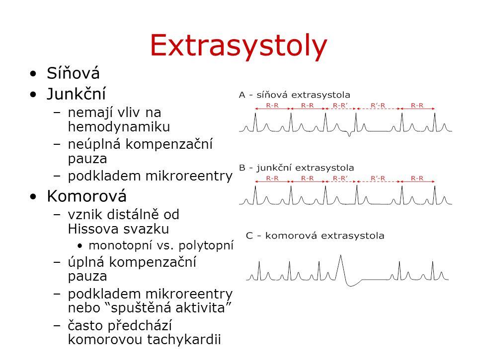 Extrasystoly Síňová Junkční –nemají vliv na hemodynamiku –neúplná kompenzační pauza –podkladem mikroreentry Komorová –vznik distálně od Hissova svazku