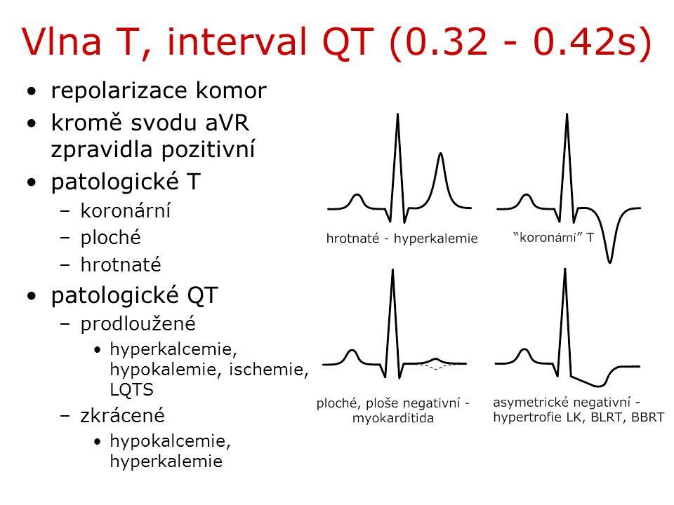 Vlna T, interval QT (0.32 - 0.42s) repolarizace komor kromě svodu aVR zpravidla pozitivní patologické T –koronární –ploché –hrotnaté patologické QT –p