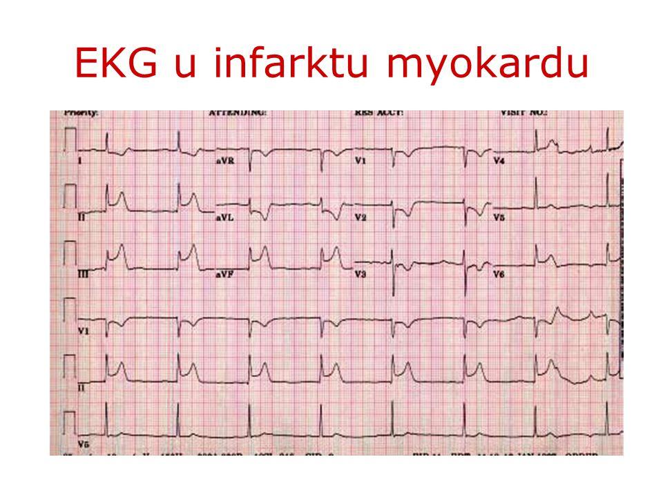 EKG u infarktu myokardu