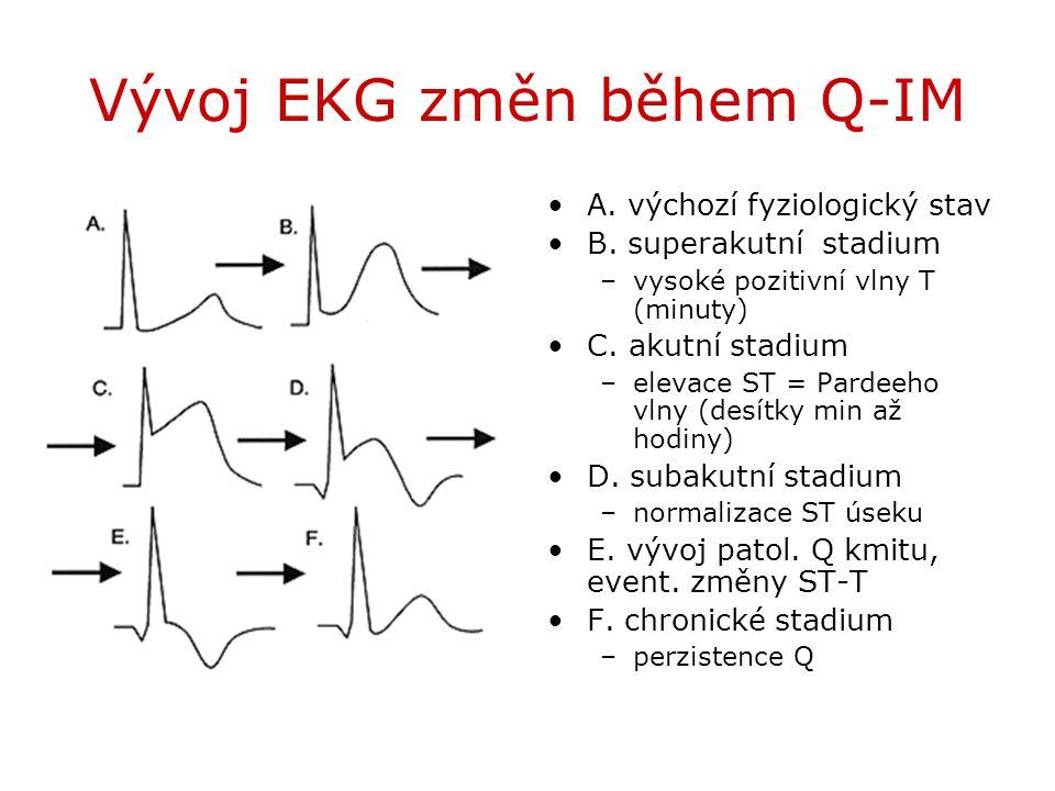 Vývoj EKG změn během Q-IM A. výchozí fyziologický stav B. superakutní stadium –vysoké pozitivní vlny T (minuty) C. akutní stadium –elevace ST = Pardee