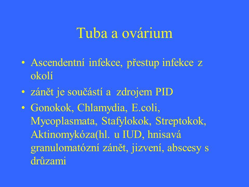 Tuba a ovárium Ascendentní infekce, přestup infekce z okolí zánět je součástí a zdrojem PID Gonokok, Chlamydia, E.coli, Mycoplasmata, Stafylokok, Stre