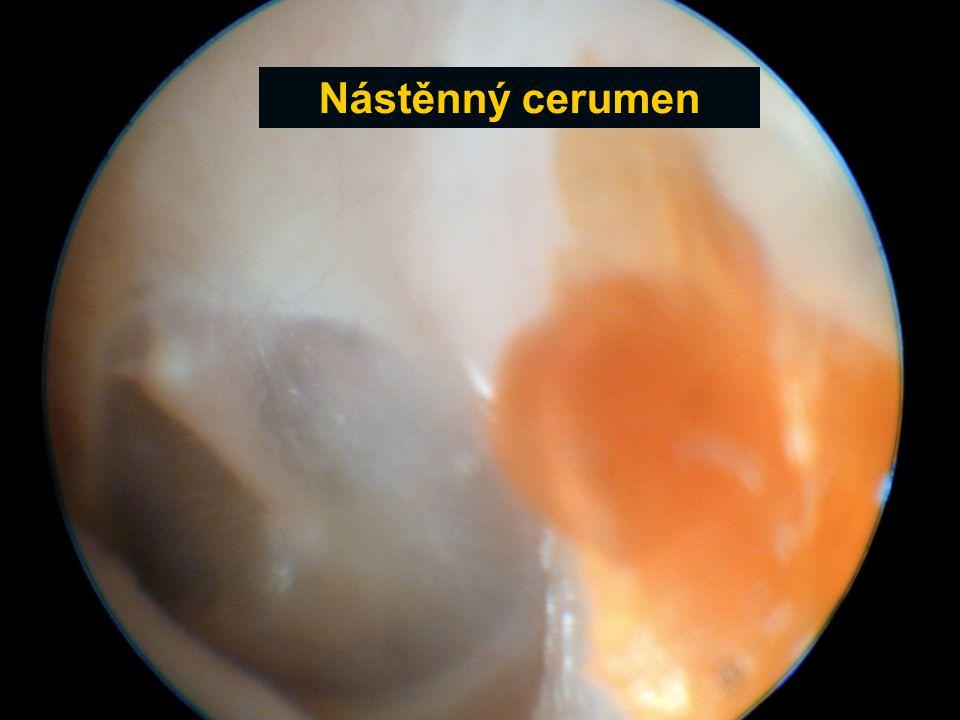Nástěnný cerumen