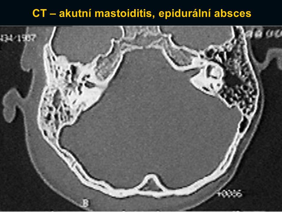 CT – akutní mastoiditis, epidurální absces