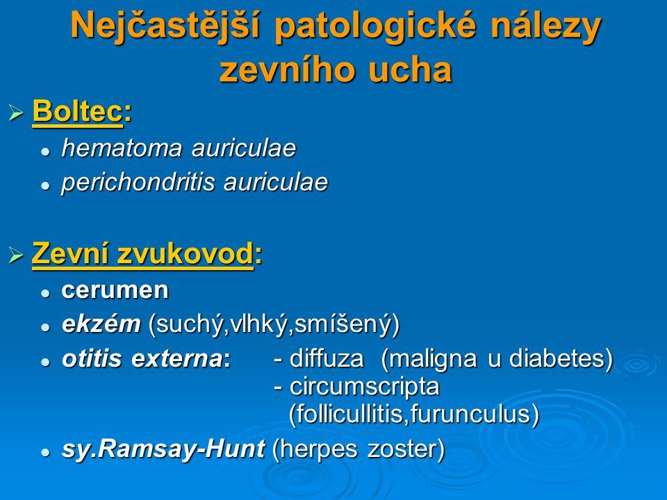 Nejčastější patologické nálezy zevního ucha  Boltec: hematoma auriculae hematoma auriculae perichondritis auriculae perichondritis auriculae  Zevní