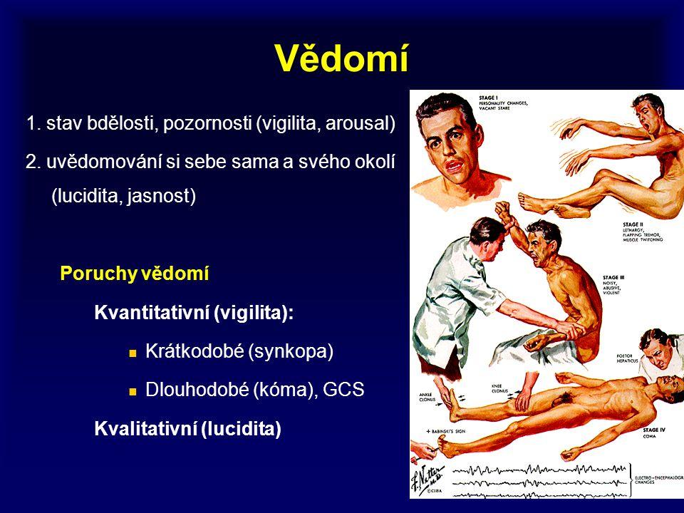 Vědomí 1. stav bdělosti, pozornosti (vigilita, arousal) 2. uvědomování si sebe sama a svého okolí (lucidita, jasnost) Poruchy vědomí Kvantitativní (vi
