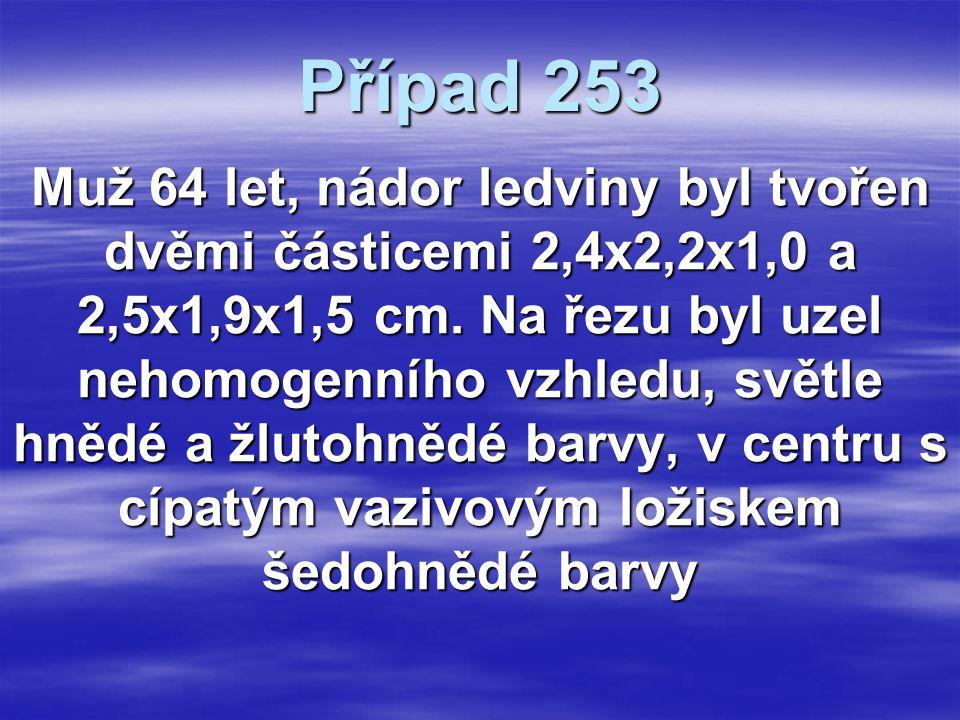 Případ 253 Muž 64 let, nádor ledviny byl tvořen dvěmi částicemi 2,4x2,2x1,0 a 2,5x1,9x1,5 cm.