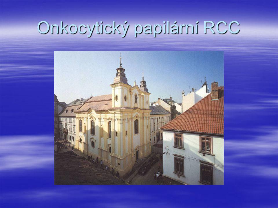 Onkocytický papilární RCC