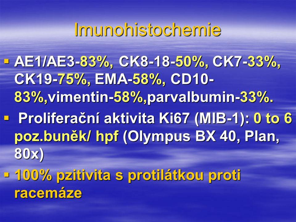 Imunohistochemie  AE1/AE3-83%, CK8-18-50%, CK7-33%, CK19-75%, EMA-58%, CD10- 83%,vimentin-58%,parvalbumin-33%.