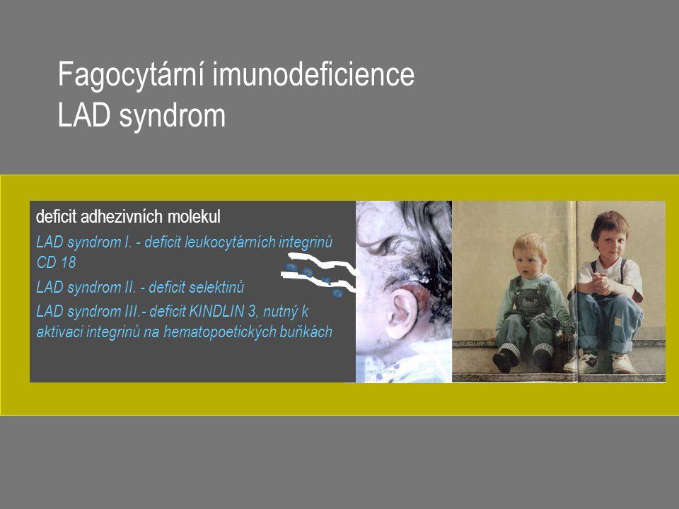 Fagocytární imunodeficience LAD syndrom deficit adhezivních molekul LAD syndrom I. - deficit leukocytárních integrinů CD 18 LAD syndrom II. - deficit