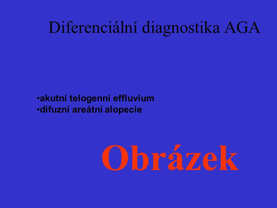 Diferenciální diagnostika AGA akutní telogenní effluvium difuzní areátní alopecie Obrázek