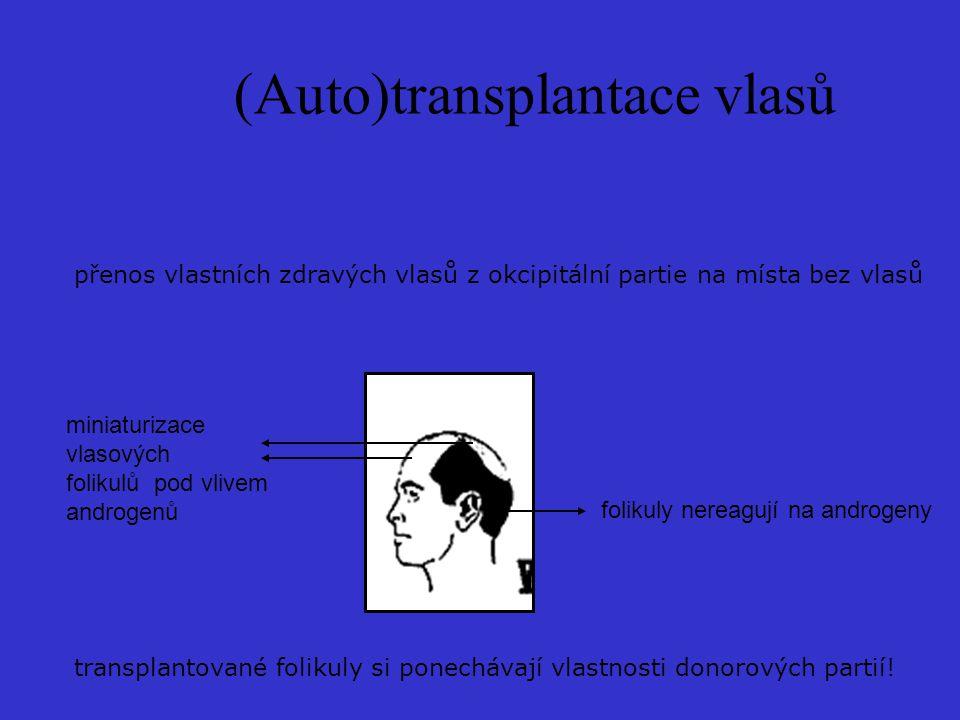 (Auto)transplantace vlasů přenos vlastních zdravých vlasů z okcipitální partie na místa bez vlasů miniaturizace vlasových folikulů pod vlivem androgenů folikuly nereagují na androgeny transplantované folikuly si ponechávají vlastnosti donorových partií!