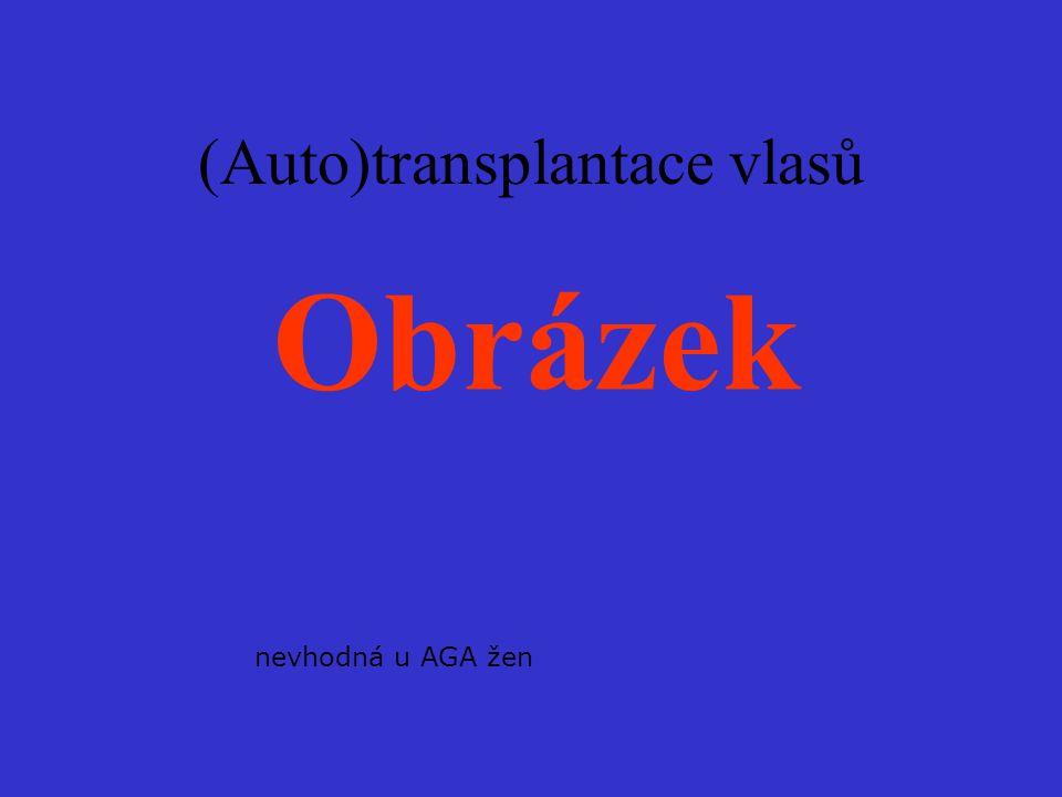 (Auto)transplantace vlasů nevhodná u AGA žen Obrázek