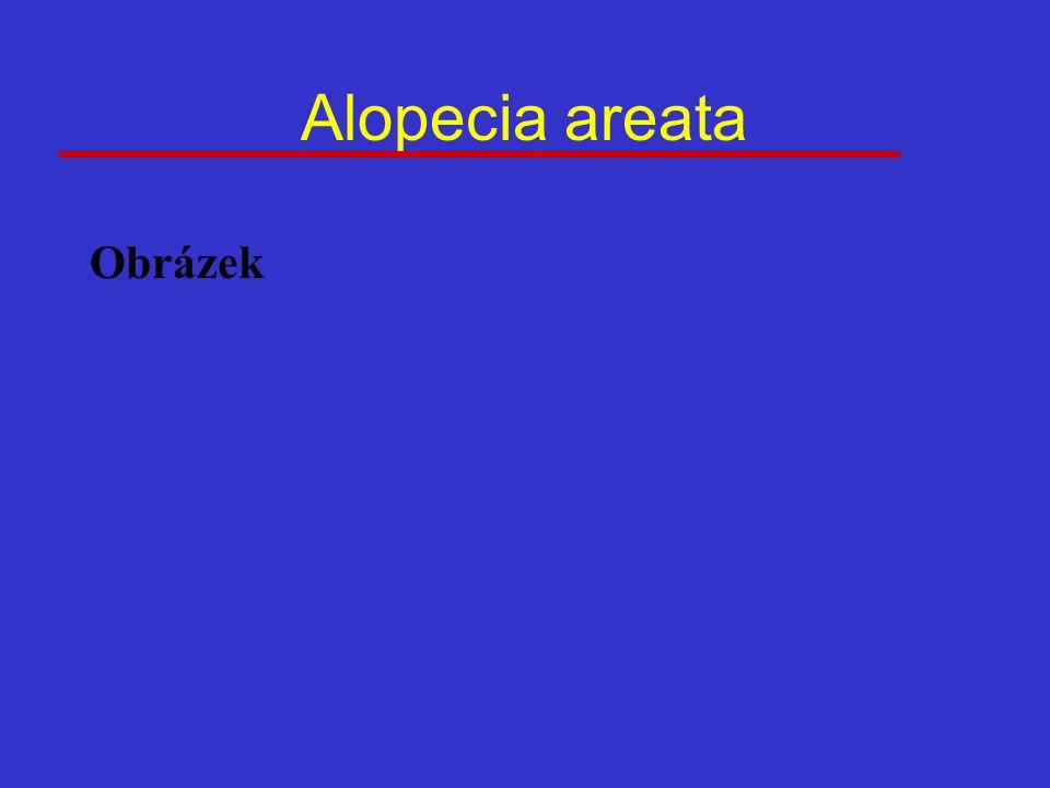 Alopecia areata Obrázek
