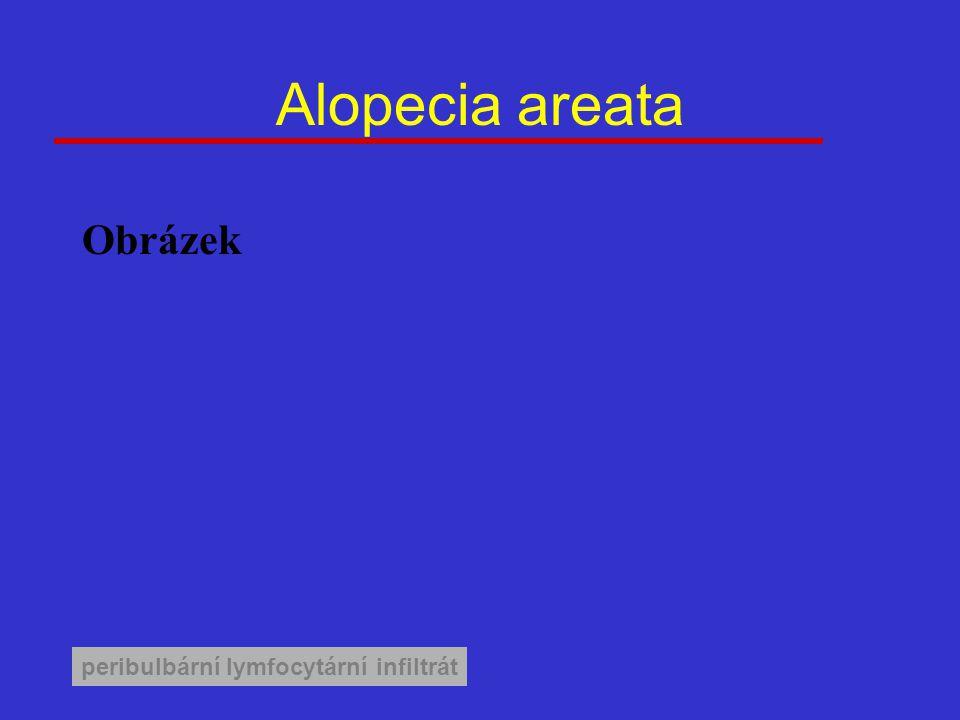 Alopecia areata peribulbární lymfocytární infiltrát Obrázek