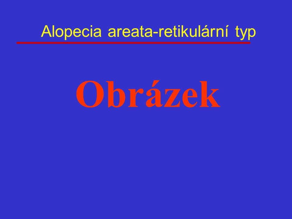 Alopecia areata-retikulární typ Obrázek