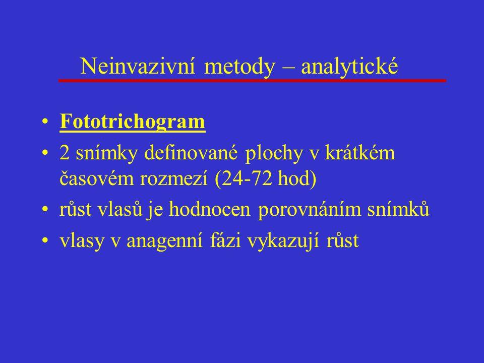 Neinvazivní metody – analytické Fototrichogram 2 snímky definované plochy v krátkém časovém rozmezí (24-72 hod) růst vlasů je hodnocen porovnáním sním
