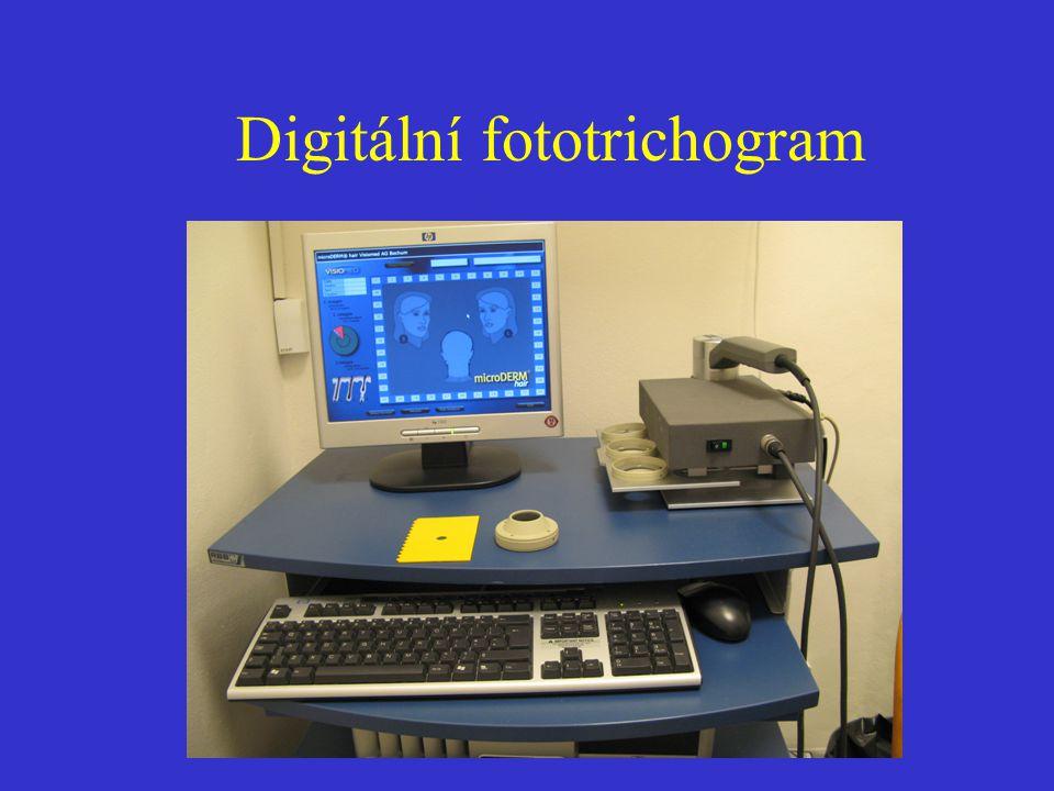 Digitální fototrichogram