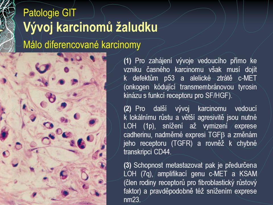 Vývoj karcinomů žaludku Málo diferencované karcinomy (1) Pro zahájení vývoje vedoucího přímo ke vzniku časného karcinomu však musí dojít k defektům p53 a alelické ztrátě c-MET (onkogen kódující transmembránovou tyrosin kinázu s funkcí receptoru pro SF/HGF).