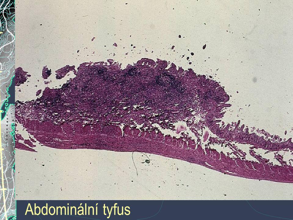 Abdominální tyfus