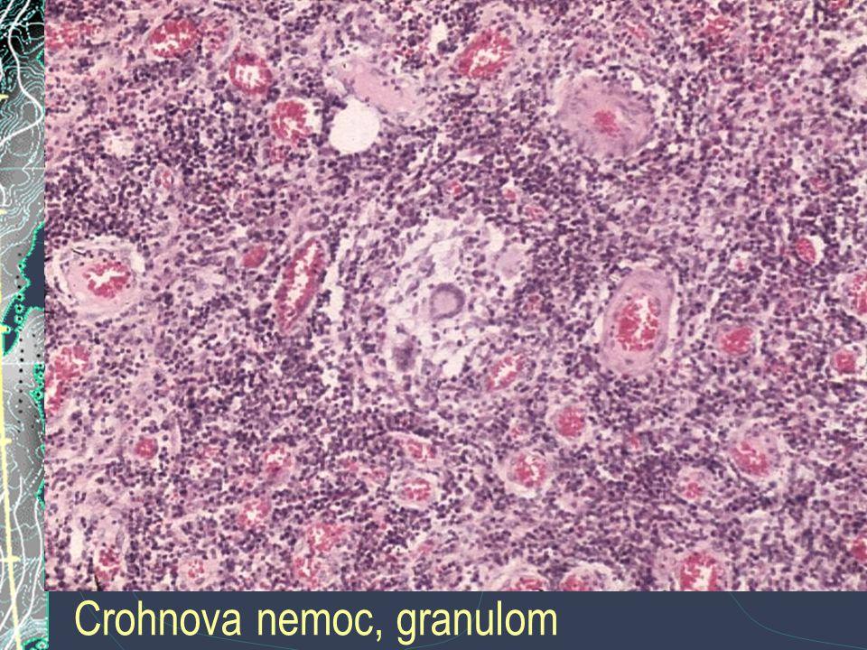 Crohnova nemoc, granulom