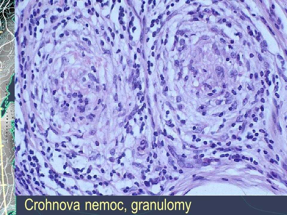 Crohnova nemoc, granulomy