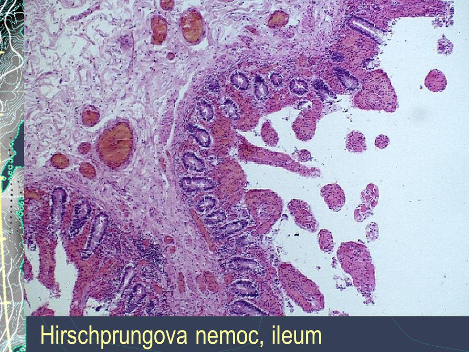 Hirschprungova nemoc, ileum