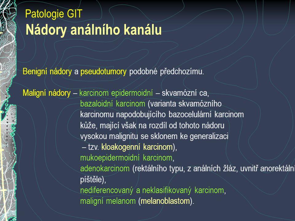 Patologie GIT Nádory análního kanálu Benigní nádory a pseudotumory podobné předchozímu. Maligní nádory – karcinom epidermoidní – skvamózní ca, bazaloi