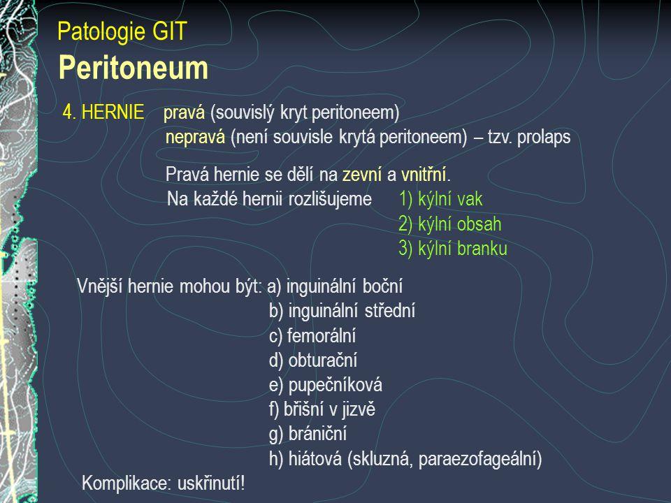 Patologie GIT Peritoneum 4. HERNIE pravá (souvislý kryt peritoneem) nepravá (není souvisle krytá peritoneem) – tzv. prolaps Pravá hernie se dělí na ze