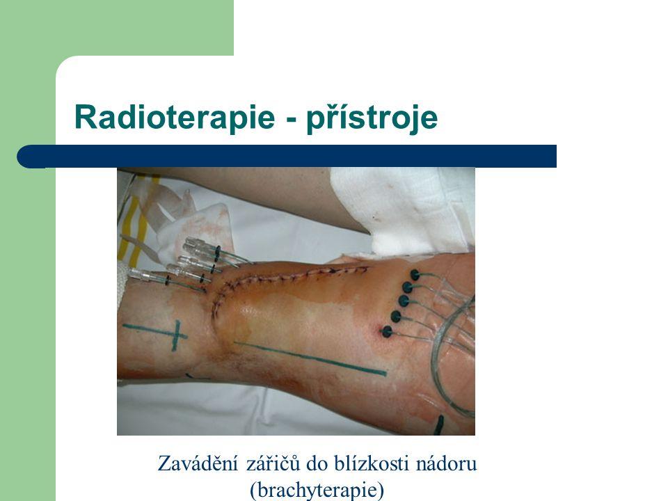 Radioterapie - přístroje Zavádění zářičů do blízkosti nádoru (brachyterapie)