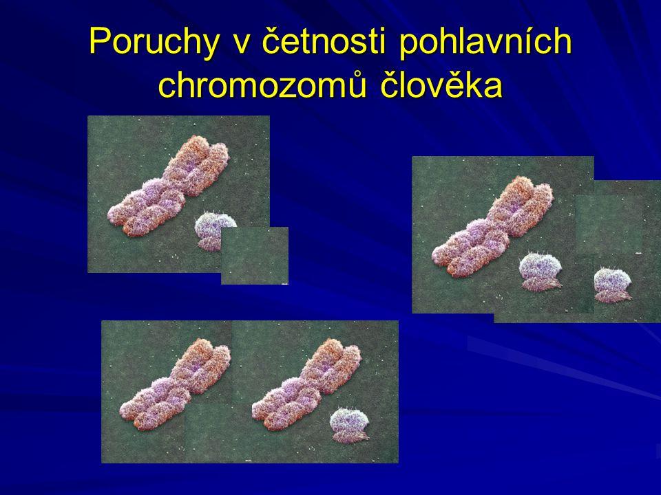 Poruchy v četnosti pohlavních chromozomů člověka