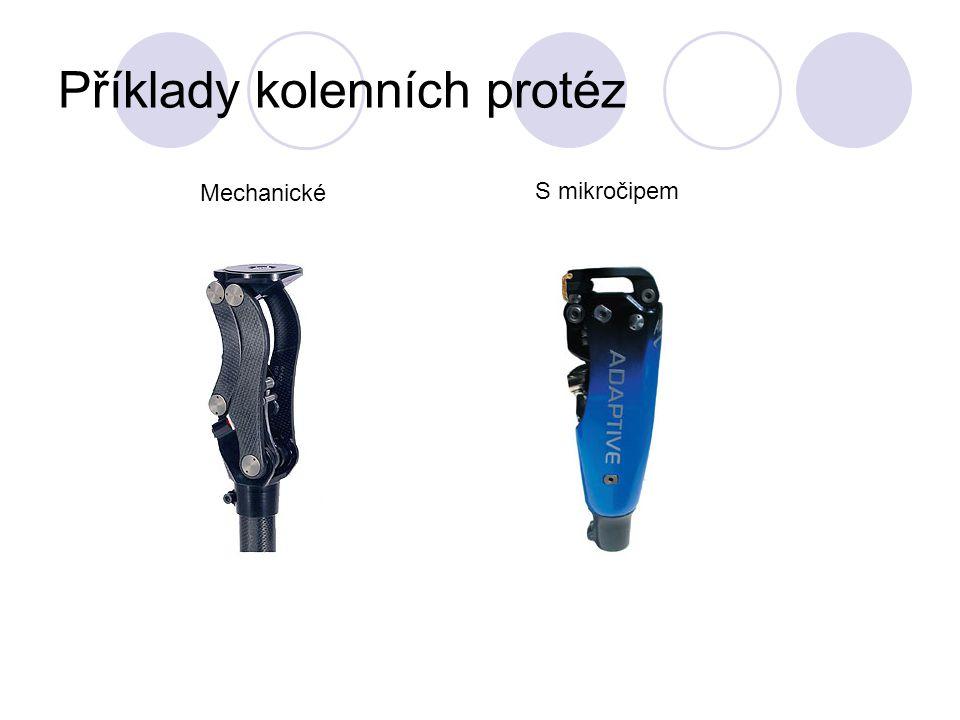 Příklady kolenních protéz Mechanické S mikročipem