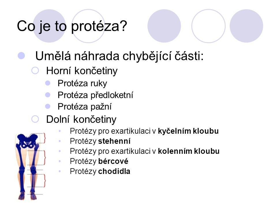 Co je to protéza.