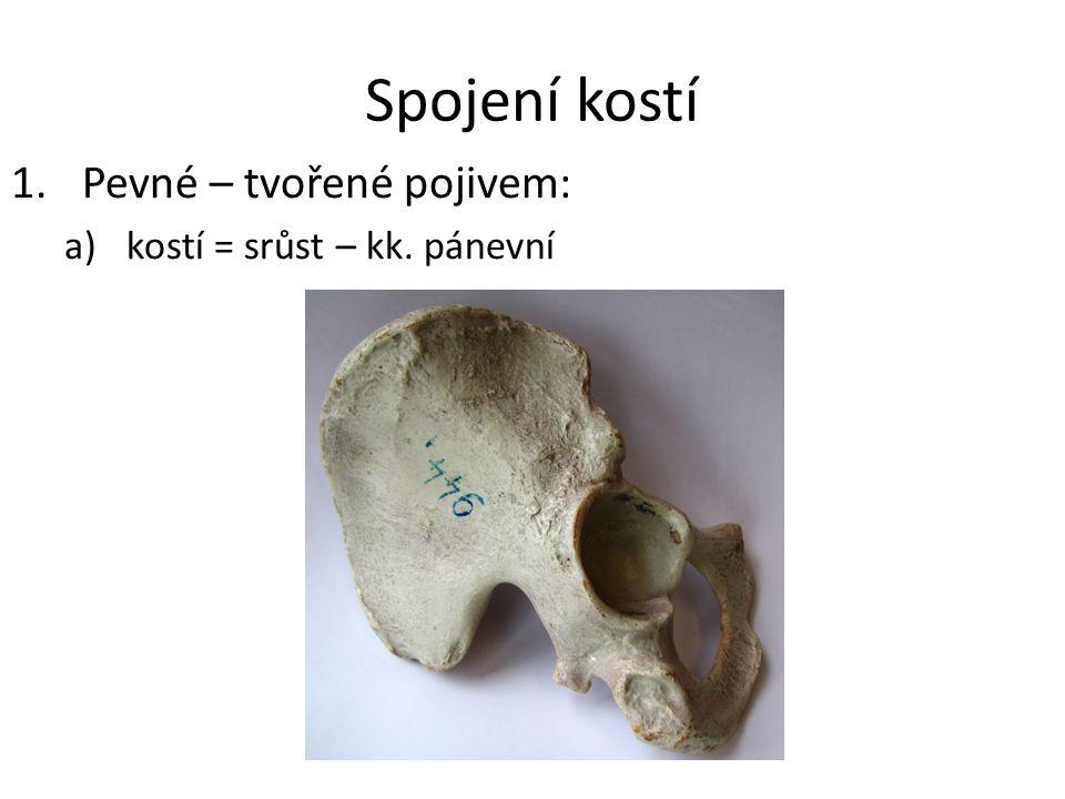 Spojení kostí 1.Pevné – tvořené pojivem: a)kostí = srůst – kk. pánevní