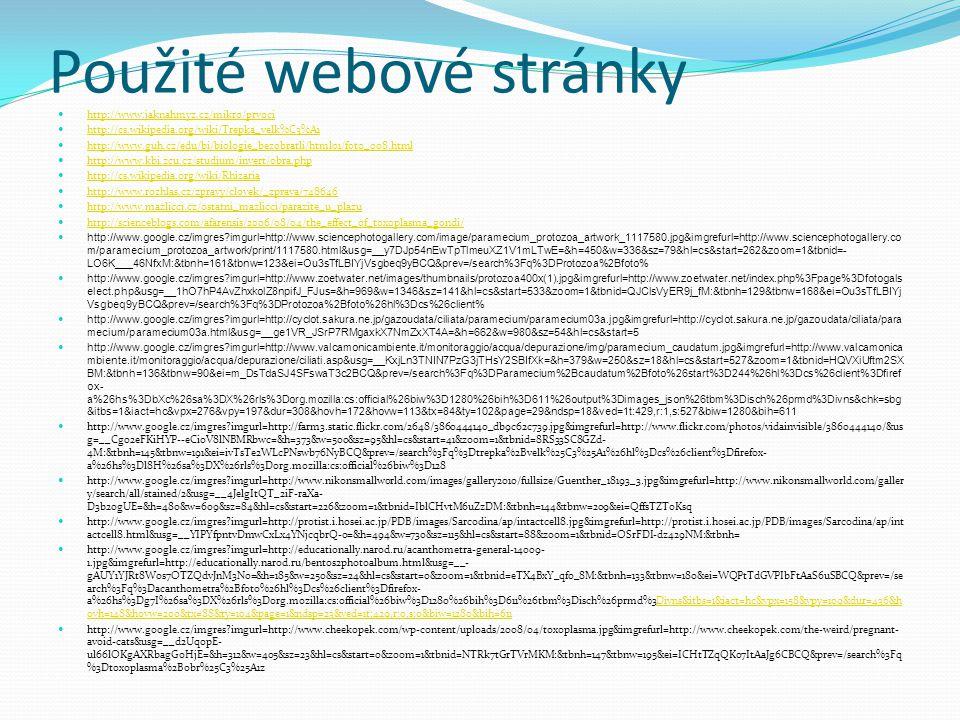 Použité webové stránky http://www.jaknahmyz.cz/mikro/prvoci http://cs.wikipedia.org/wiki/Trepka_velk%C3%A1 http://www.guh.cz/edu/bi/biologie_bezobratli/html01/foto_008.html http://www.kbi.zcu.cz/studium/invert/obra.php http://cs.wikipedia.org/wiki/Rhizaria http://www.rozhlas.cz/zpravy/clovek/_zprava/748646 http://www.mazlicci.cz/ostatni_mazlicci/parazite_u_plazu http://scienceblogs.com/afarensis/2006/08/04/the_effect_of_toxoplasma_gondi/ http://www.google.cz/imgres?imgurl=http://www.sciencephotogallery.com/image/paramecium_protozoa_artwork_1117580.jpg&imgrefurl=http://www.sciencephotogallery.co m/paramecium_protozoa_artwork/print/1117580.html&usg=__y7DJp54nEwTpTlmeuXZ1V1mLTwE=&h=450&w=336&sz=79&hl=cs&start=262&zoom=1&tbnid=- LO6K___46NfxM:&tbnh=161&tbnw=123&ei=Ou3sTfLBIYjVsgbeq9yBCQ&prev=/search%3Fq%3DProtozoa%2Bfoto% http://www.google.cz/imgres?imgurl=http://www.zoetwater.net/images/thumbnails/protozoa400x(1).jpg&imgrefurl=http://www.zoetwater.net/index.php%3Fpage%3Dfotogals elect.php&usg=__1hO7hP4AvZhxkolZ8npifJ_FJus=&h=969&w=1346&sz=141&hl=cs&start=533&zoom=1&tbnid=QJClsVyER9j_fM:&tbnh=129&tbnw=168&ei=Ou3sTfLBIYj Vsgbeq9yBCQ&prev=/search%3Fq%3DProtozoa%2Bfoto%26hl%3Dcs%26client% http://www.google.cz/imgres?imgurl=http://cyclot.sakura.ne.jp/gazoudata/ciliata/paramecium/paramecium03a.jpg&imgrefurl=http://cyclot.sakura.ne.jp/gazoudata/ciliata/para mecium/paramecium03a.html&usg=__ge1VR_JSrP7RMgaxkX7NmZxXT4A=&h=662&w=980&sz=54&hl=cs&start=5 http://www.google.cz/imgres?imgurl=http://www.valcamonicambiente.it/monitoraggio/acqua/depurazione/img/paramecium_caudatum.jpg&imgrefurl=http://www.valcamonica mbiente.it/monitoraggio/acqua/depurazione/ciliati.asp&usg=__KxjLn3TNIN7PzG3jTHsY2SBIfXk=&h=379&w=250&sz=18&hl=cs&start=527&zoom=1&tbnid=HQVXiUftm2SX BM:&tbnh=136&tbnw=90&ei=m_DsTdaSJ4SFswaT3c2BCQ&prev=/search%3Fq%3DParamecium%2Bcaudatum%2Bfoto%26start%3D244%26hl%3Dcs%26client%3Dfiref ox- a%26hs%3DbXc%26sa%3DX%26rls%3Dorg.mozilla:cs:official%26biw%3D1280%26bih%3D611%26output%