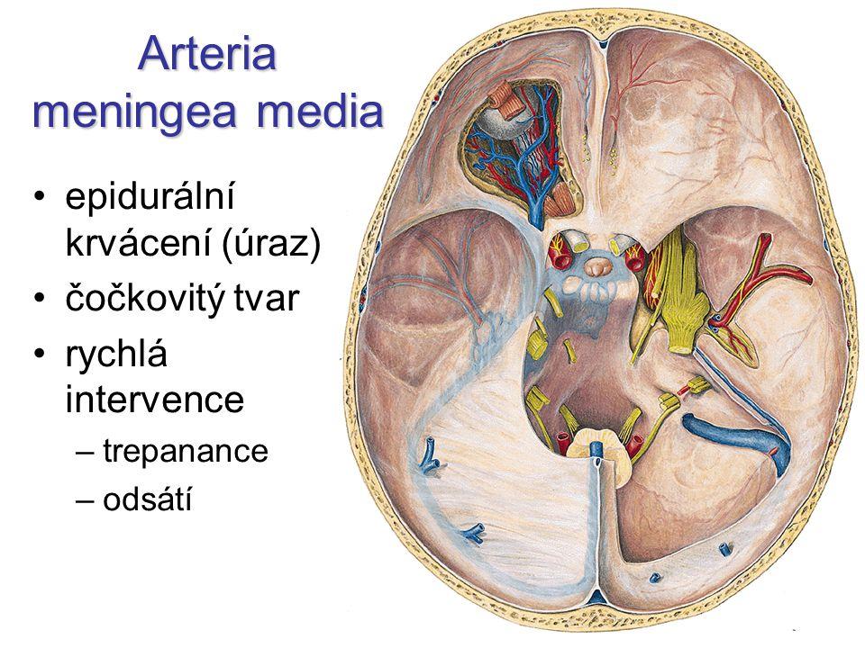 Arteria meningea media epidurální krvácení (úraz) čočkovitý tvar rychlá intervence –trepanance –odsátí
