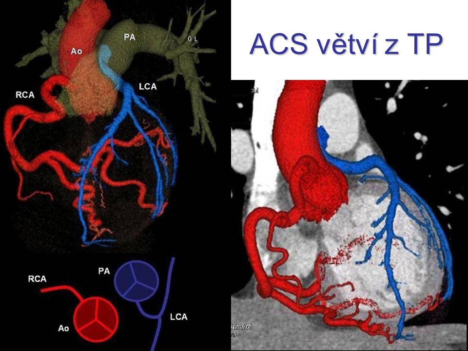 Aorta ascendens; Pars ascendens aortae = Vzestupná srdečnice sinus aortae Valsalvae (dx., sin., ant.) –arteria coronaria dx.