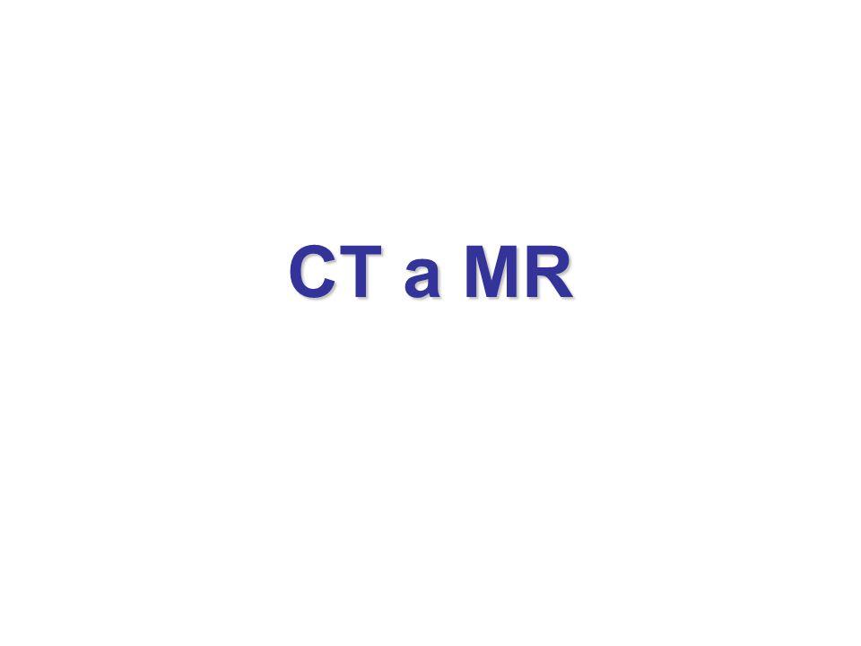 CT a MR
