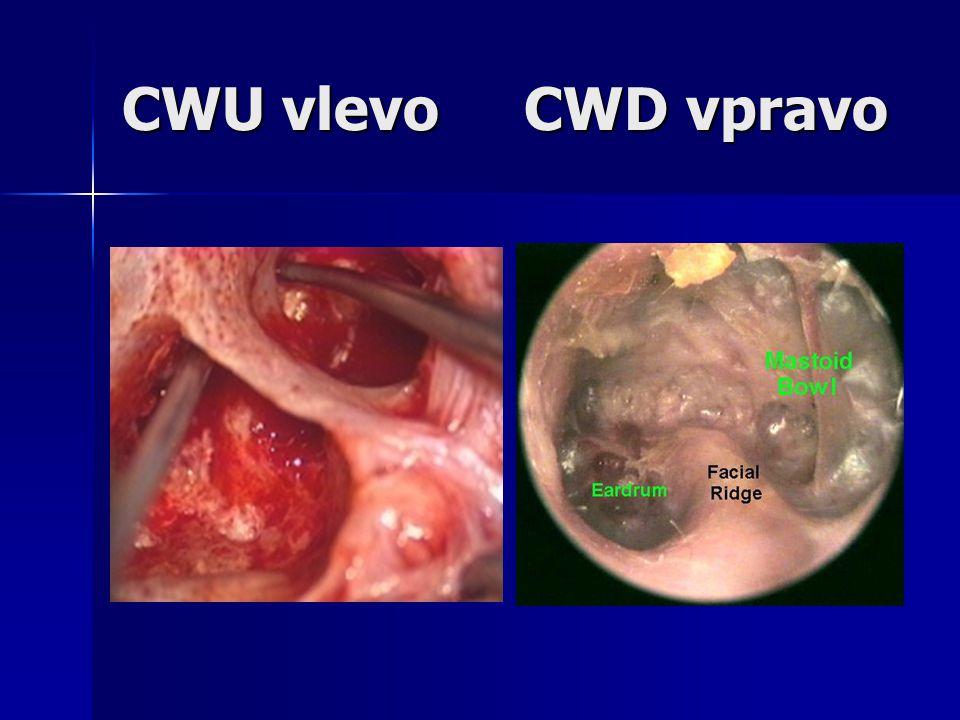 CWU vlevo CWD vpravo