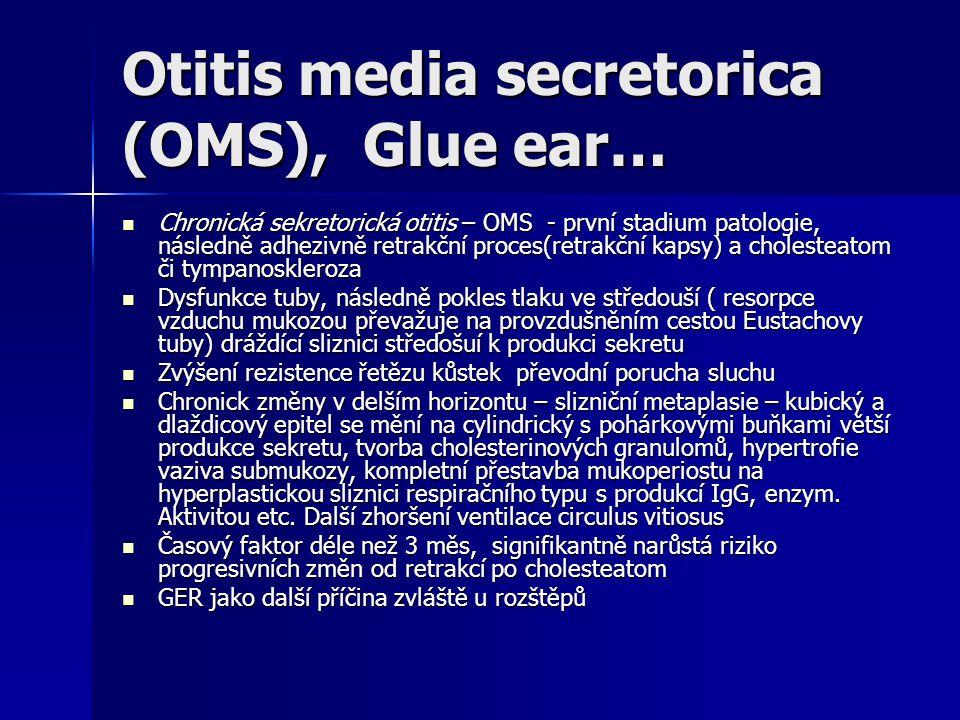 Otitis media secretorica (OMS), Glue ear… Chronická sekretorická otitis – OMS - první stadium patologie, následně adhezivně retrakční proces(retrakční