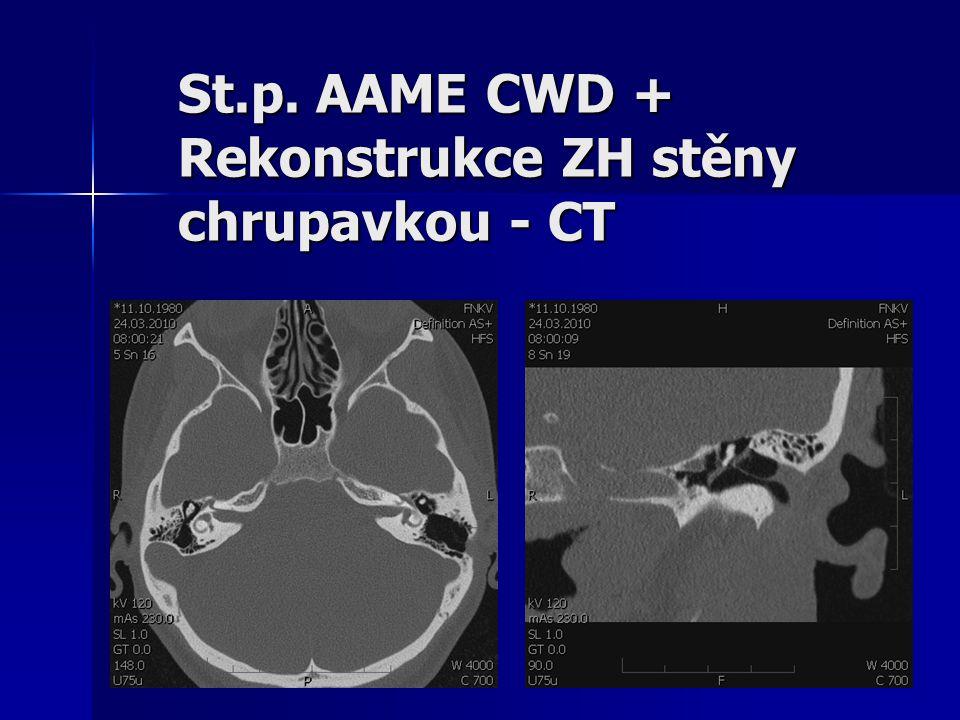 St.p. AAME CWD + Rekonstrukce ZH stěny chrupavkou - CT
