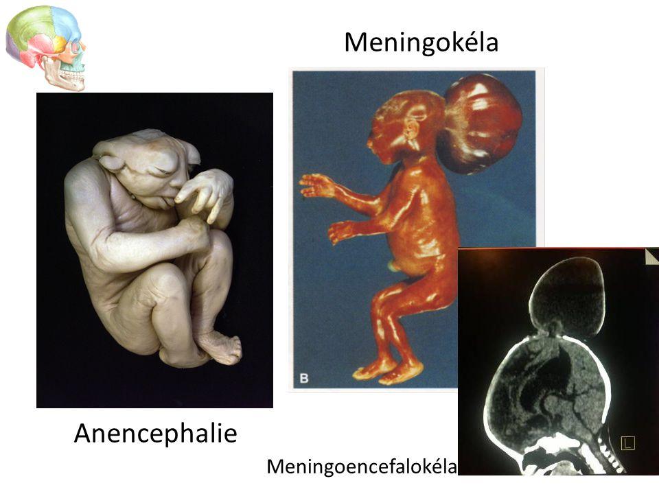 Anencephalie Meningokéla Meningoencefalokéla